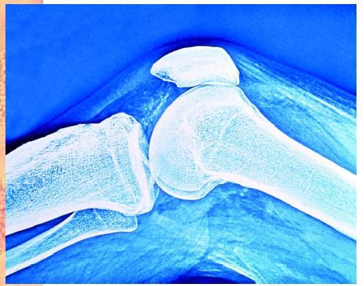 boneonbone